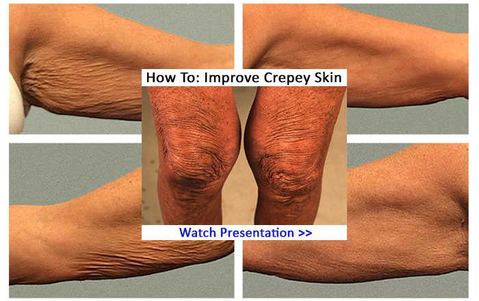 Natural Cure For Crepey Skin