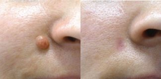 Mole Removal Cream - SkinCell Pro Reviews, Skin Tag and Mole Removal