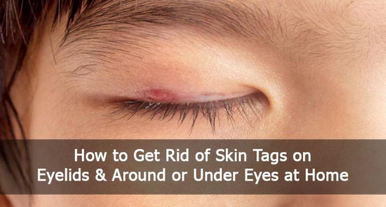 How To Remove Skin Tag on Eyelid