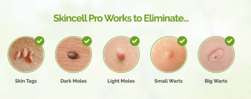 Skin Tag Removal Mole Removal